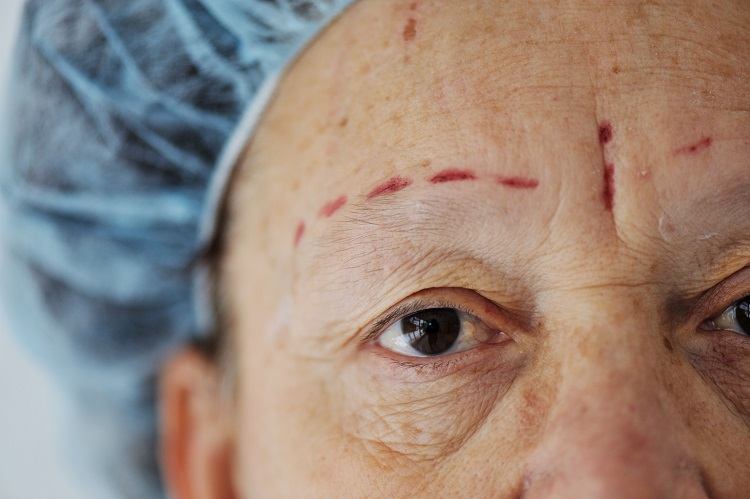 Cosmetic Surgery – What You Will Need To Know